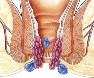 亚州肛门色图_但肛裂往往伴有排便时和排便后的肛门疼痛,血色鲜红.
